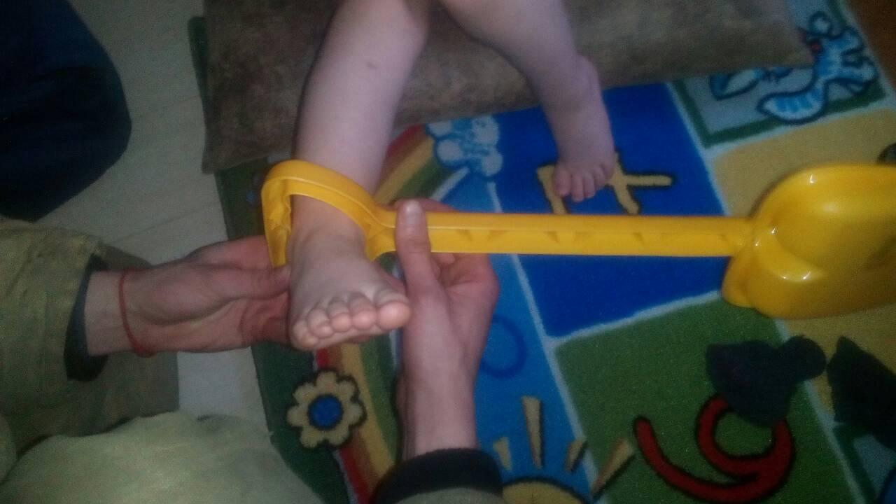 Сотрудники МЧС вызволили застрявшего ногой в лопатке ребенка