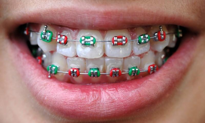 Лигатурные брекеты ― классика ортодонтии
